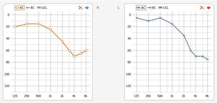 AUDIOGRAM charts