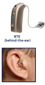 Behind-The-Ear (BTE)
